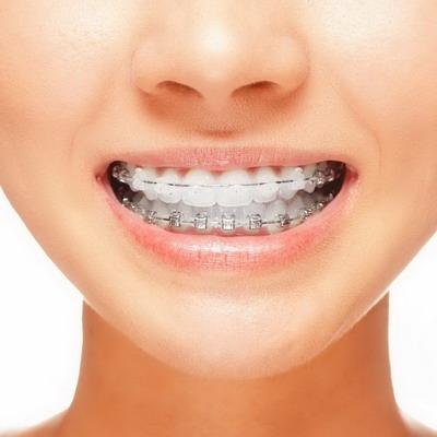 Хорошие виниры для зубов
