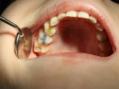 Обезболивающий укол при лечении зуба